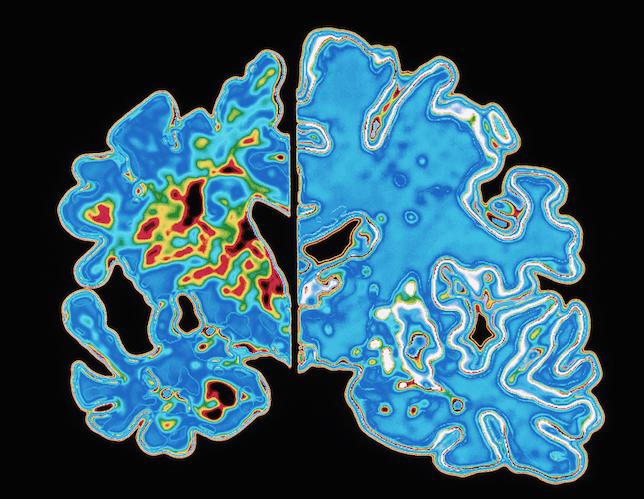 Alzheimer Dis Brain