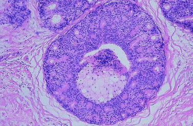 Breast Intraductal Carcinoma