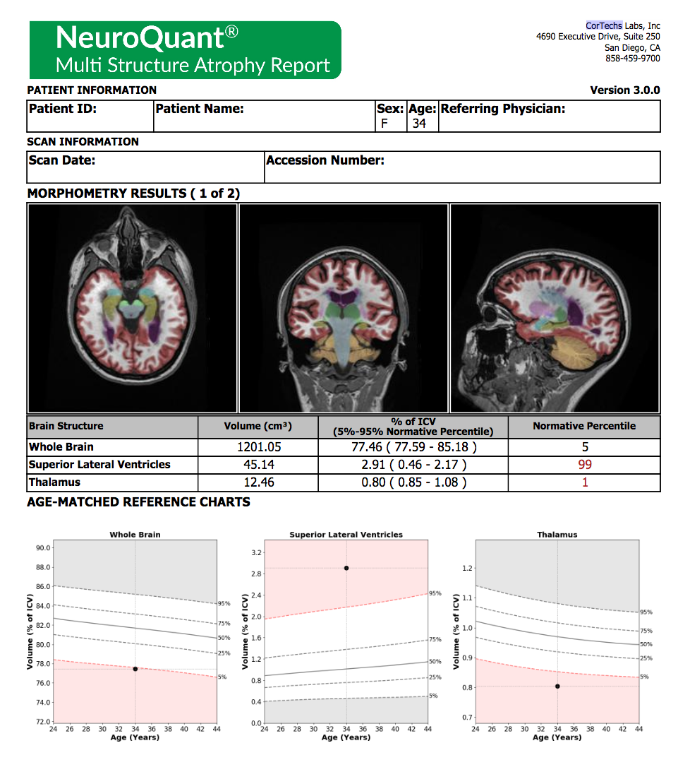 NeuroQuant Report